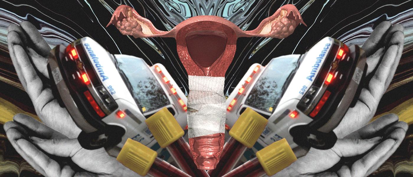 How I broke my vagina